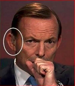 Abbott_Earpiece